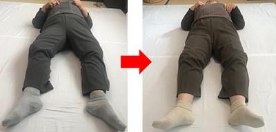 膝の変形1.png