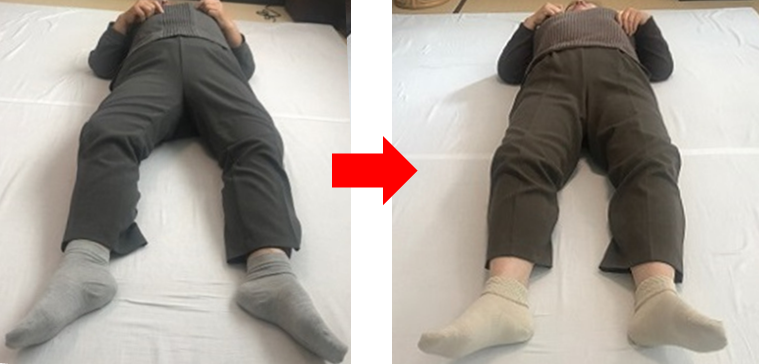 膝の変形.png